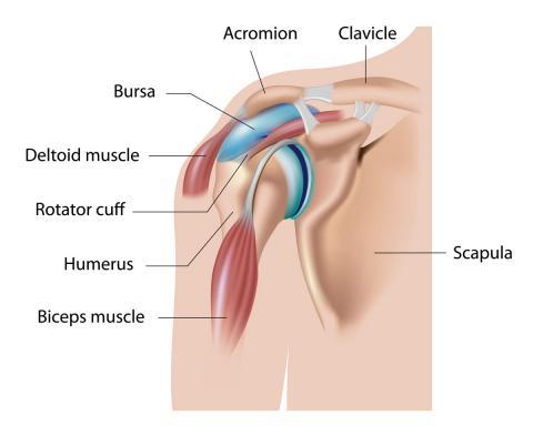 causas de la tendinitis de hombro
