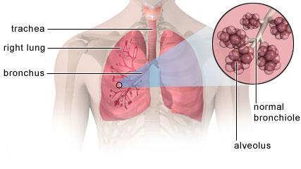 ¿Se puede curar la miocardiopatía viral?