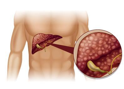 cirrosis hepatica tratamiento medicina natural