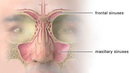 Sinusitis Síntomas Y Tratamiento Del Dolor Bupa